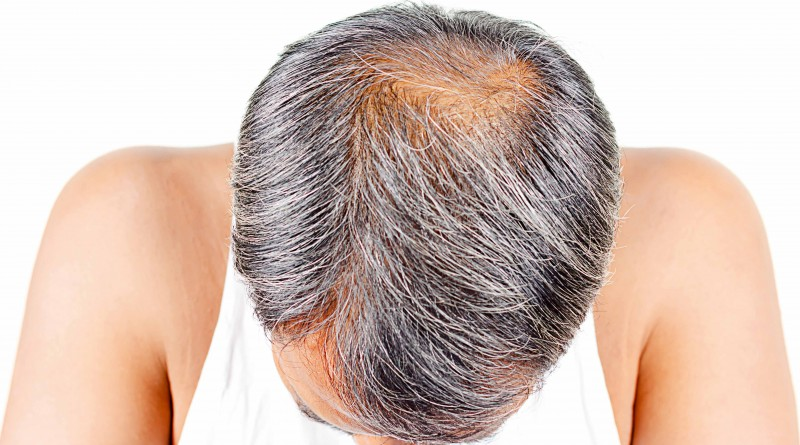 How is a hair transplant?